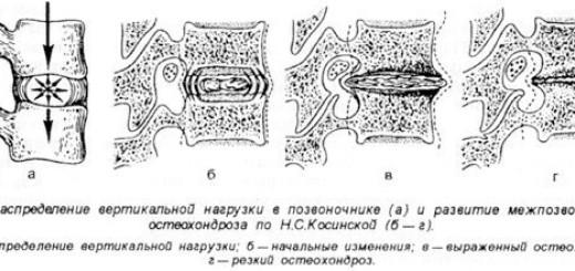 Остеохандроз